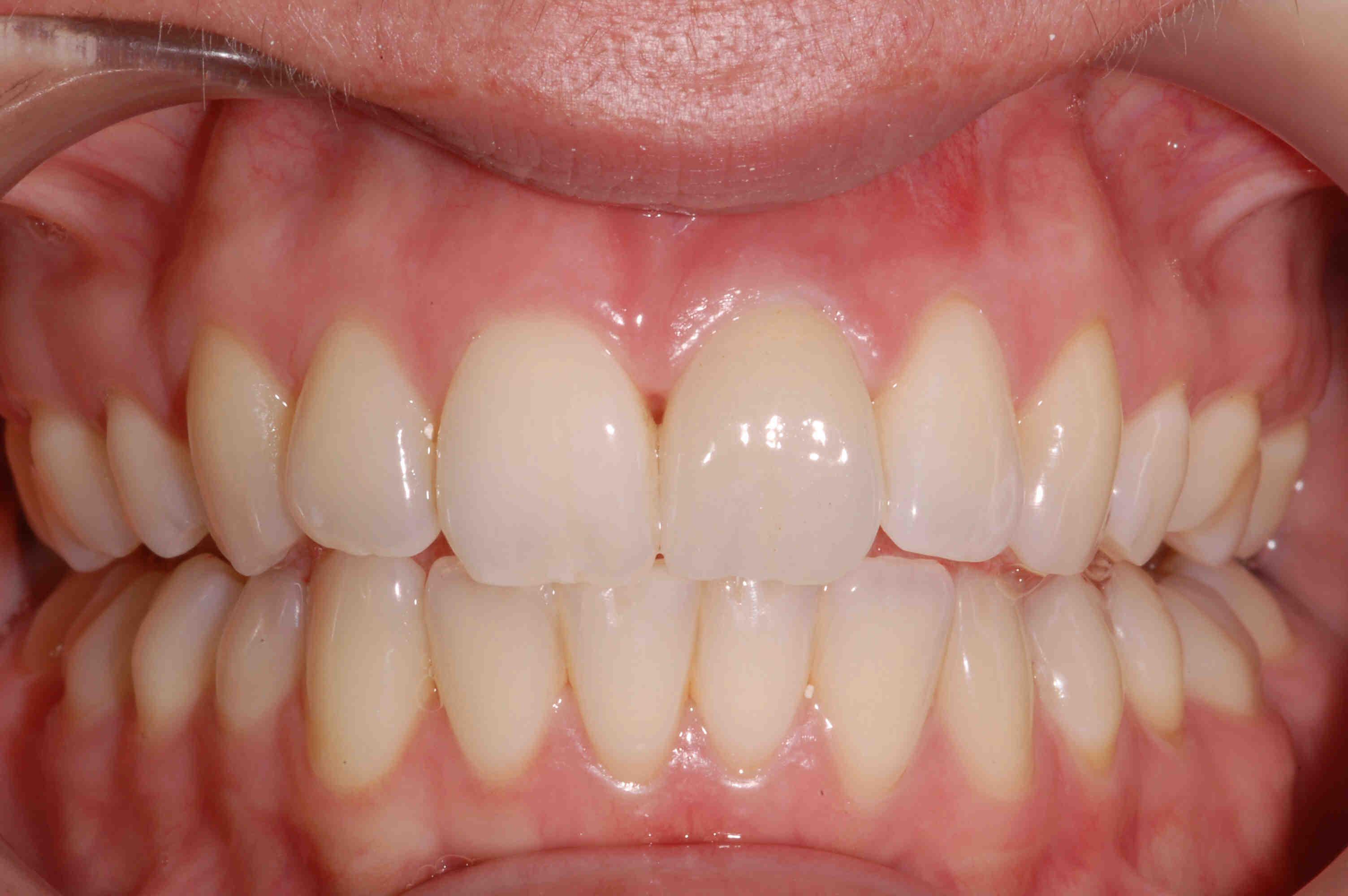preventive dentistry clarinda clinic