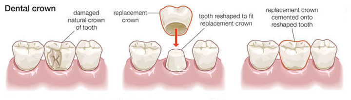 what-is-a-dental-crown1