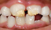 Tooth Enamel Defects Clayton 3 Fixes Clarinda Clinic
