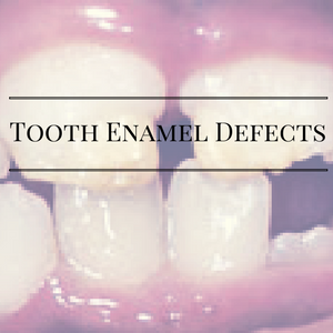 Tooth Enamel Defects – 3 Treatment Options