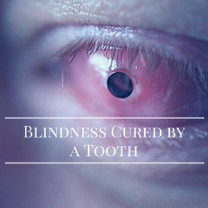 Blindness Cured by a Tooth